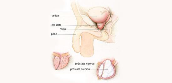 alto asunto masaje de próstata